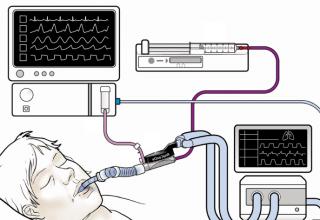 Anestezik Ajan Gazı Analizörü Nedir?